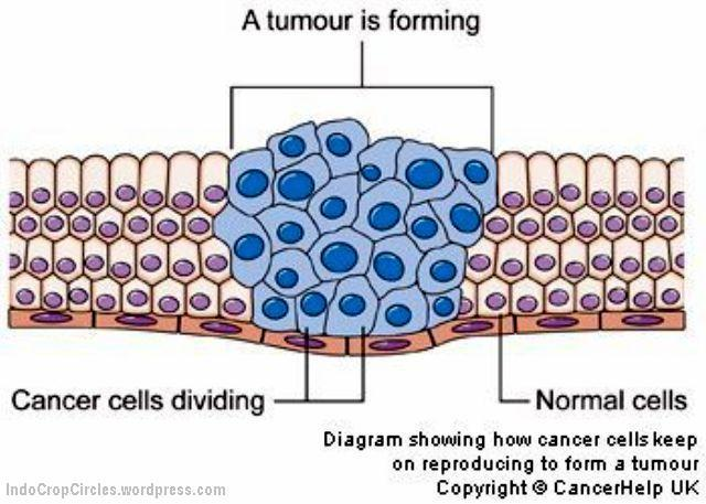 A tumor is forming